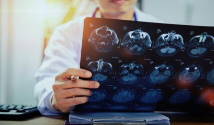 داخلی مغز و اعصاب